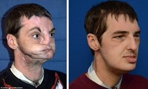 Transformative Face Transplant of the Day