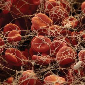 Fibrin Threads Trapping Red Blood Cells