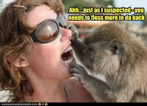 Ahh....just as I suspected - you needs to floss more in da back