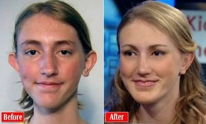 Controversial Plastic Surgery of the Day