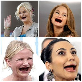 Single Topic Blog of the Day: Actresses Without Teeth