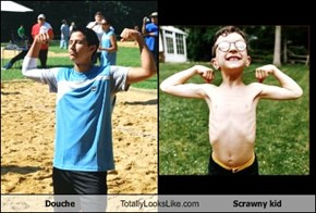 Douche Totally Looks Like Scrawny kid