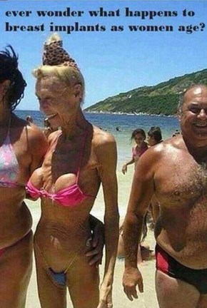 Breast Implant Fail