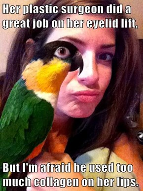 Her plastic surgeon did a great job on her eyelid lift,  But I'm afraid he used too much collagen on her lips.