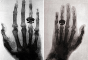 First Human X-Ray Taken in 1896