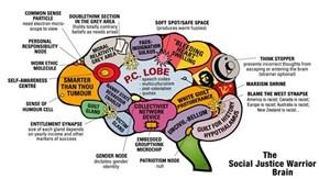 The SJW Brain