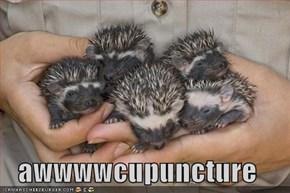 awwwwcupuncture