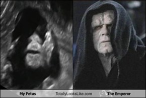 My Fetus Totally Looks Like The Emperor