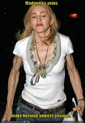 Madonna's veins  make heroine addicts envious.