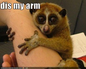 dis my arm