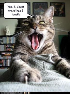Yep, 6. Count em, ai haz 6 tonsils