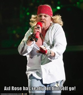 Axl Rose has really let himself go!