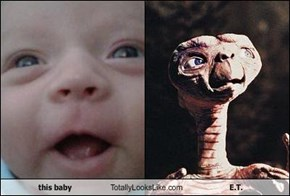 this baby Totally Looks Like E.T.