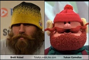 Brett Keisel Totally Looks Like Yukon Cornelius