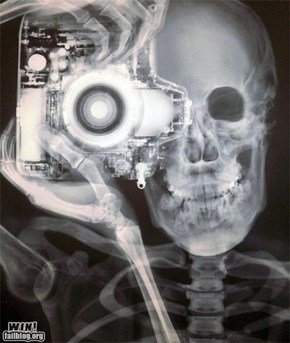 CLASSIC: X-Ray WIN