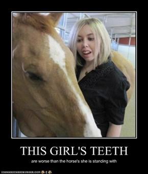 This Girl's Teeth