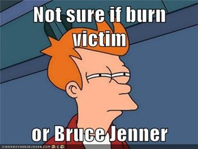 Not sure if burn victim  or Bruce Jenner