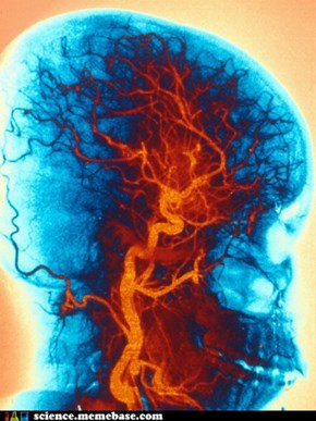 Angiogram of Your Noggin!
